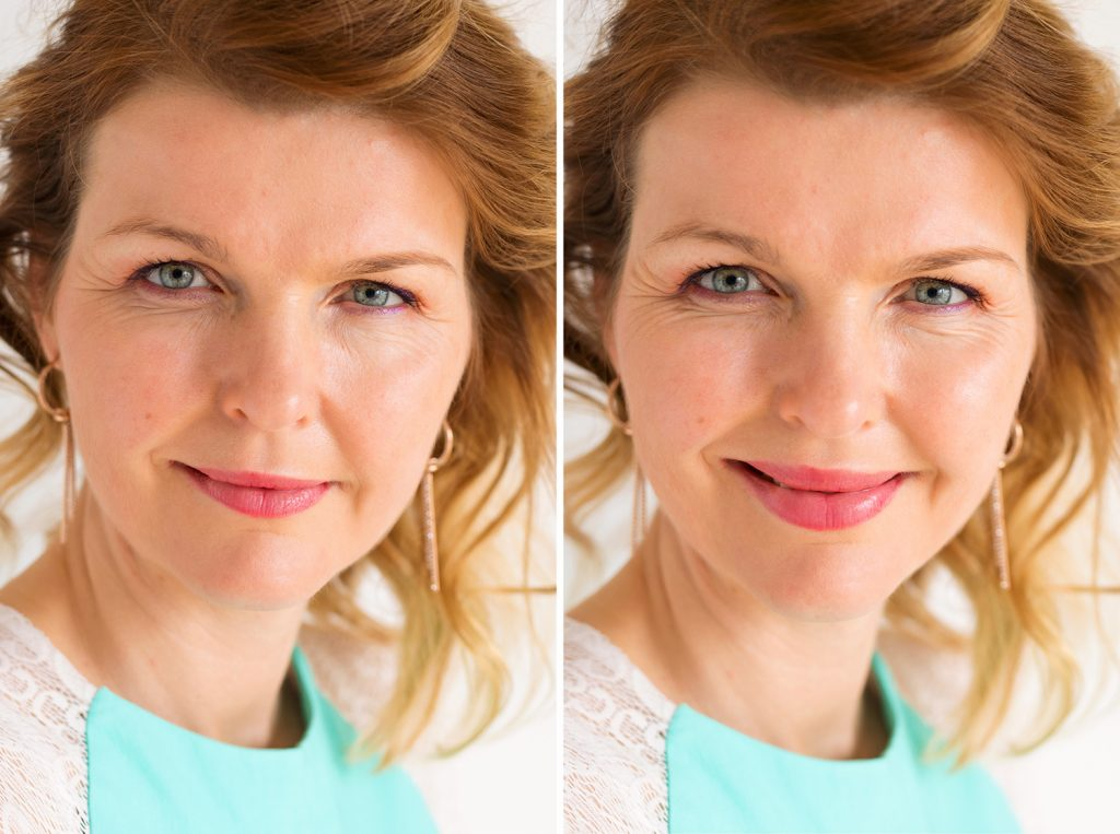 Filler labbra - Prima e dopo